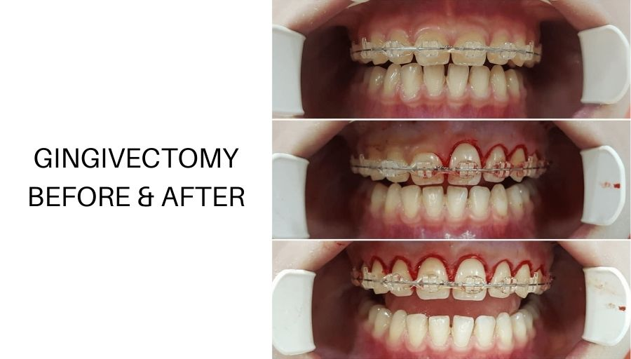 what is gingivectomy