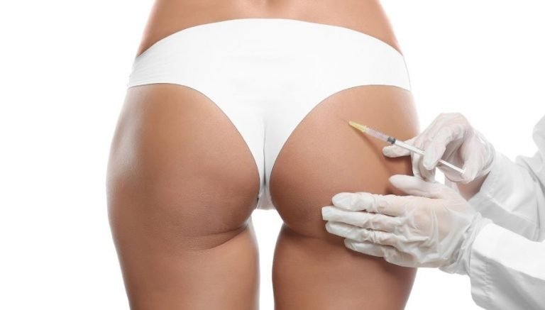 Butt Implants: Cost, Procedures, Recovery & Risks